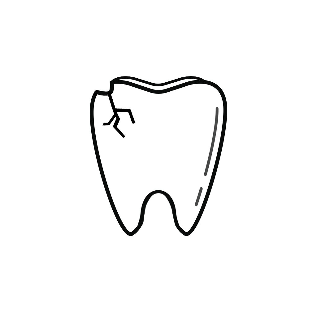 Wayne NE Dentist | I Chipped a Tooth! What Can I Do?